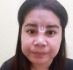 Пациентка после ринопластики, которая оставила у девушки дырку в носу