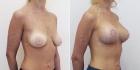 Увеличение груди. Екатерина Вакорина