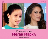 Меган Маркл до и после ринопластики