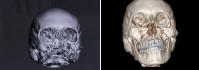 Череп Элизабет Китинг  до и после реконструктивной операции
