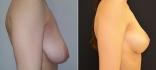 Ольга Ованесова. Подтяжка груди без имплантов