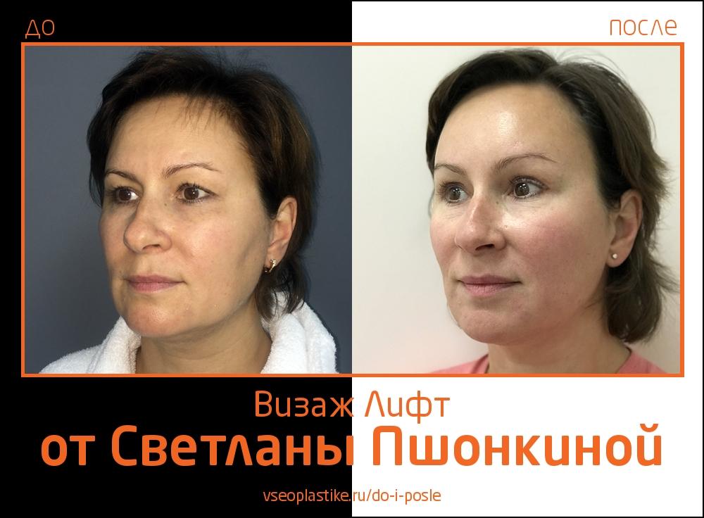Визаж Лифт фото до и после