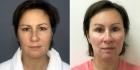 Пациентка Светланы Пшонкиной. До и после Визаж Лифт