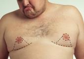 Борьба с гинекомастией: всё больше мужчин решается на пластическую операцию