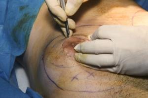 Борьба с гинекомастией