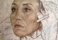 Британский художник посвятил картины пластическим операциям