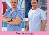 Александр Мясницкий дои послеподтяжки лица