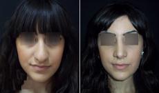 До и после ринопластики у Тиграна Алексаняна