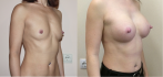 Фото до и после маммопластики по методике NATURALBEAUTY