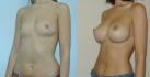Результаты до и после маммопластики по методике NATURALBEAUTY
