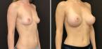 До и после маммопластики по методике NATURALBEAUTY