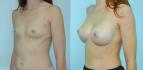 Фото до и после пластики груди по методике NATURALBEAUTY