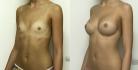 До и после пластики груди по методике NATURALBEAUTY