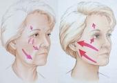 Подтяжка овала лица