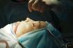 Уже во время операции очевидно, что нос пациентки стал короче