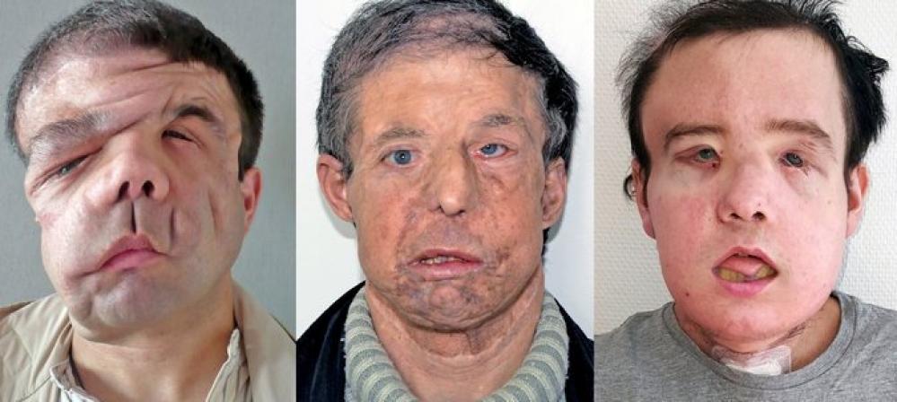 Три лица Жерома Амона