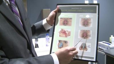 Носовой имплантат поможет справиться с затруднением дыхания