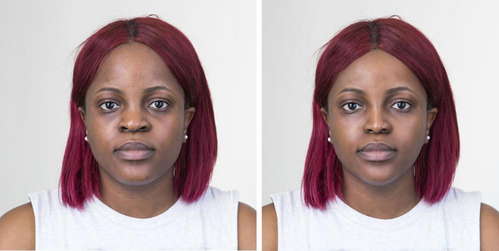 Толани до и после операции