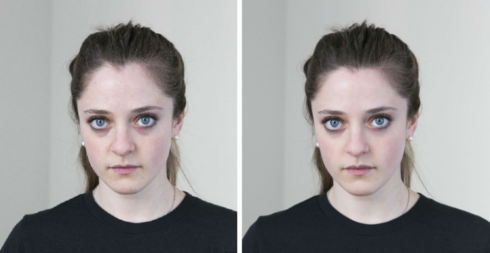 Лаура до и после