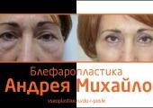 Пациентка доктора Михайлова помолодела после коррекции век