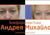 Порой достаточно сделать небольшую коррекцию в области век, чтобы помолодеть. Пример тому — пациентка доктора Андрея Михайлова.