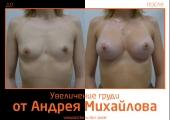 Андрей Михайлов. Фото до и после увеличения груди