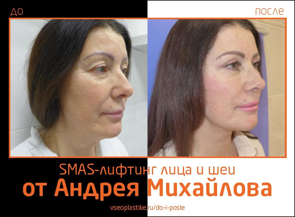 Андрей Михайлов. Фото до и после SMAS-лифтинга лица и шеи