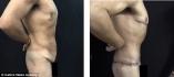 Фото британца до и после круговой торсопластики