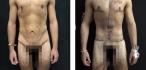 Фото Мартинеса до и после круговой торсопластики