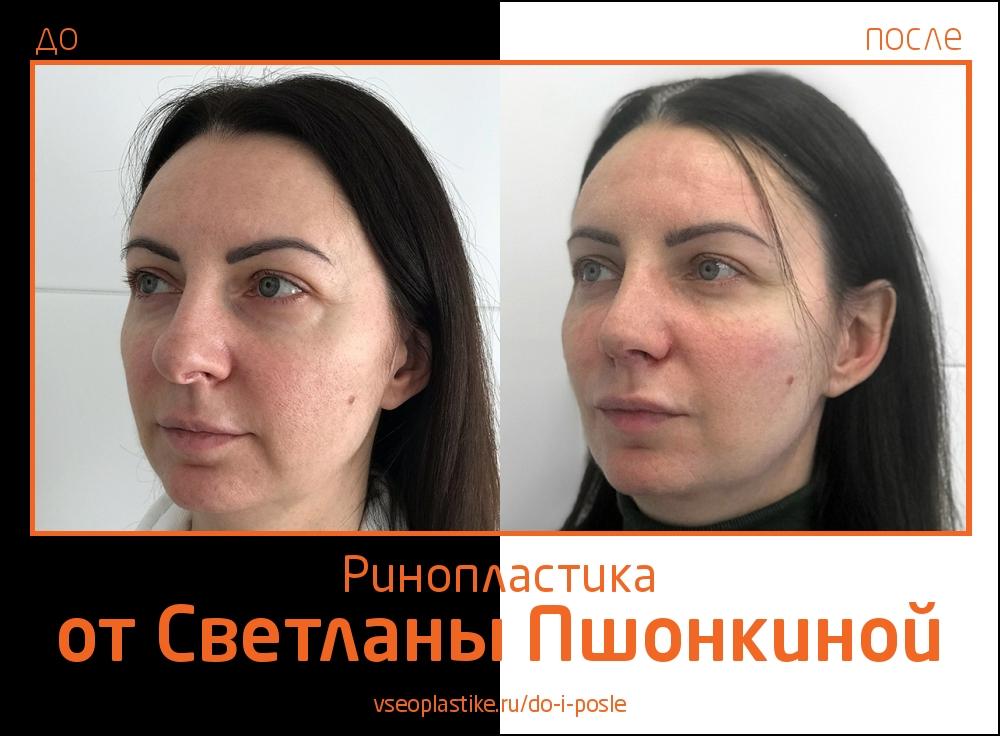 Светлана Пшонкина ринопластика