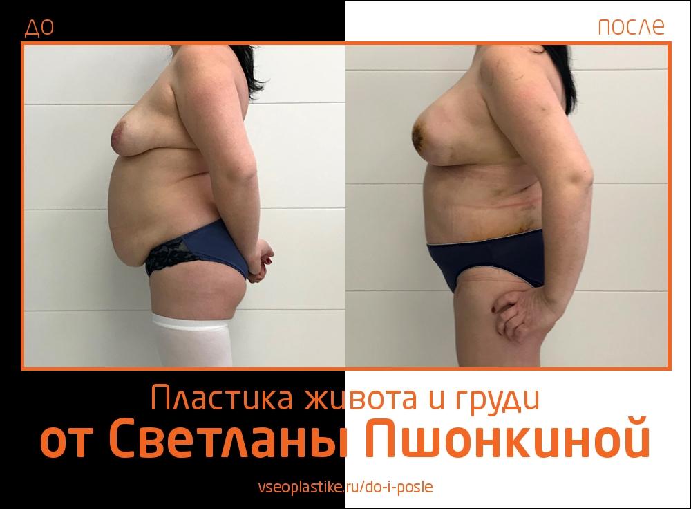 Светлана Пшонкина. Фото до и после абдоминопластики и пластики груди
