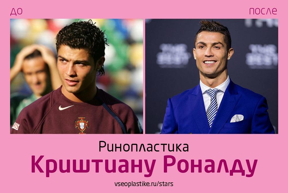 Криштиану Роналду до и после ринопластики