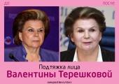 Валентина Терешкова до и после подтяжки лица