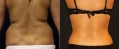 Фото до и после совмещенной вейзер-липосакции и абдоминопластики у доктора  Зленко
