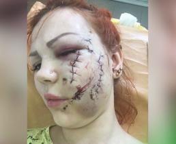 Жена футболиста Мамаева помогла изуродованной девушке