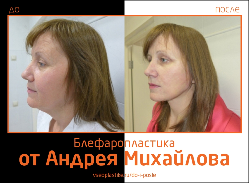 Андрей Михайлов. Фото до и после блефаропластики