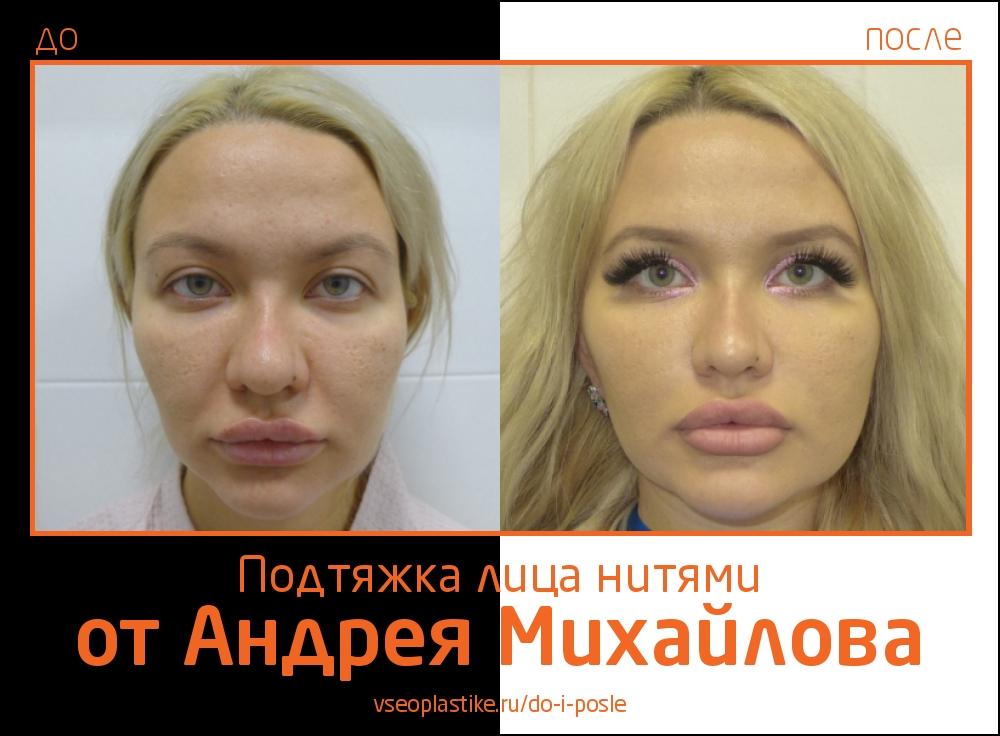 Пациентке была выполнена малоинвазивная подтяжка лица нитями, в результате которой женщина получила естественный эффект омоложения.