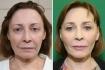 Фото до и после омоложения лица