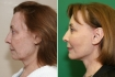Фото пациентки до и после омоложения лица