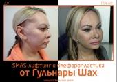 Гульнара Шах. Фото до и после SMAS-лифтинга и блефаропластики