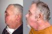 Морис Дежарден до и после пересадки лица