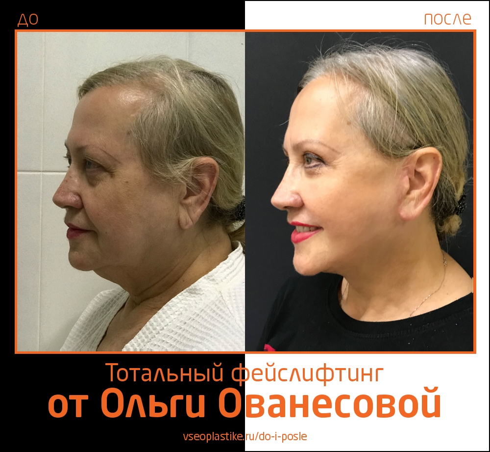 Ольга Ованесова. Фото до и после тотального омоложения лица