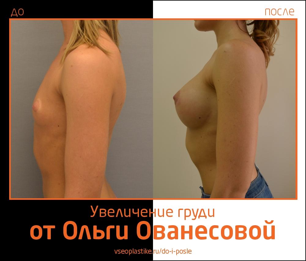 Результаты органосохраняющей операции по увеличению молочных желез