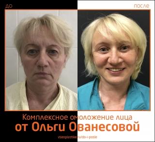 Ольга Ованесова. Фото до и после комплексного омоложения лица