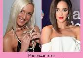 Ольга Бузова до и после ринопластики