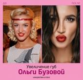 Ольга Бузова до и после увеличения губ