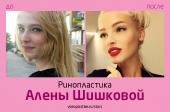 Алена Шишкова до и после ринопластики