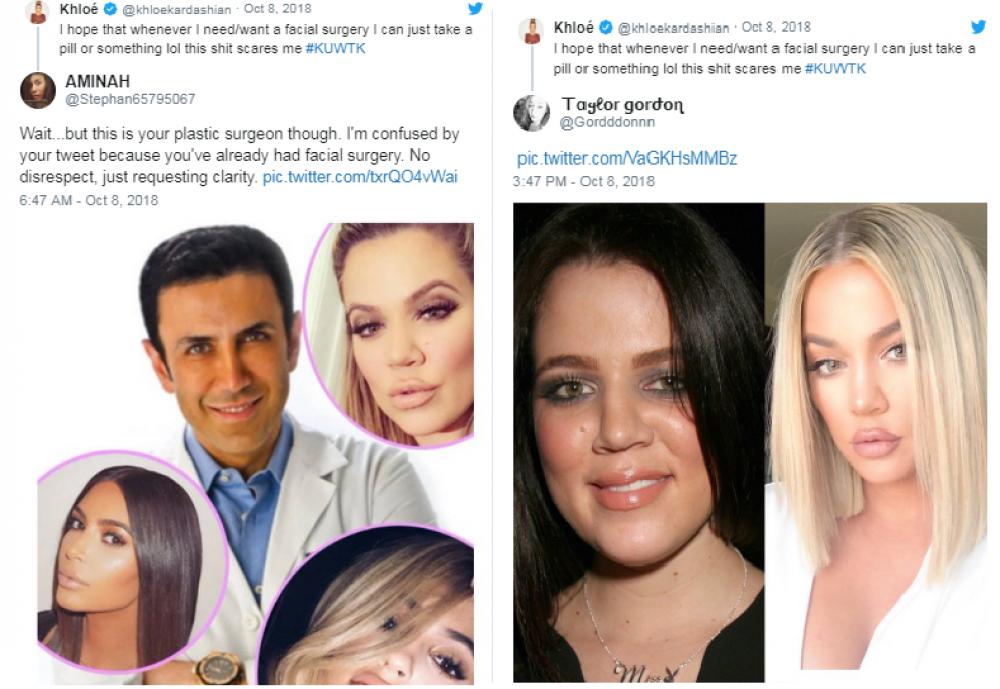 Хлои Кардашьян заявила, что никогда не делала пластику