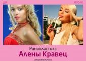 Алена Кравец до и после ринопластики