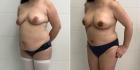 До и после абдоминопластики